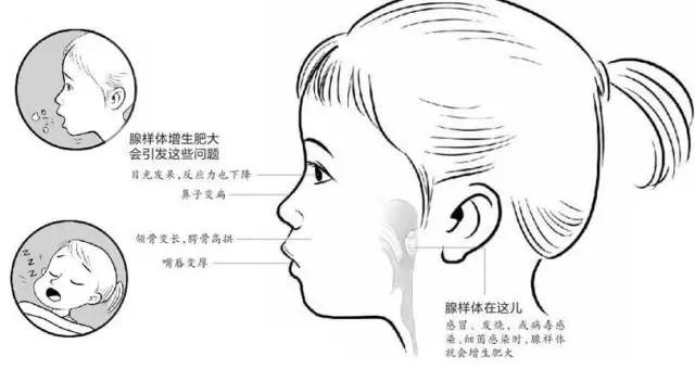 儿童面部手绘图案